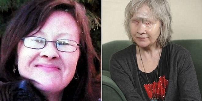 Wendy Hamriding chien defigure visage