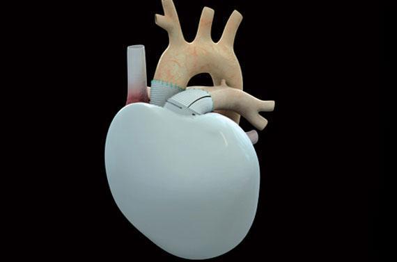 coeur artifiel patient mort