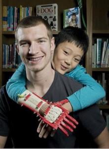 prothese de main robohand