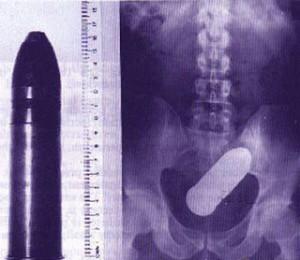 vibromasseur coincé dans le rectum homme mort