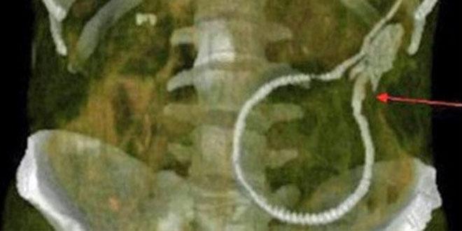 anguille dans el ventre