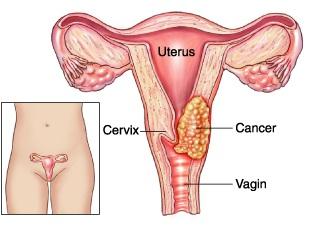 bilan-santé-50-ans-humains-cancer-col-de-utérus