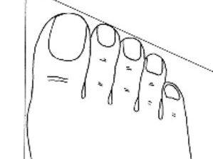 forme-des-pieds-reflette-votre-personnalité-pied-romain