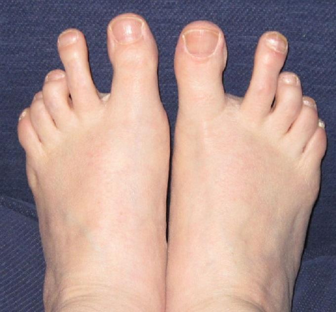pieds-étranges-que-vous-ayez-jamais-vus