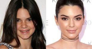 evolution-soeurs-kardashian-de-2008-a-2016