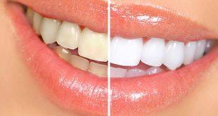 blanchiment-dentaire-des-raisons-de-le-faire-chez-votre-dentiste
