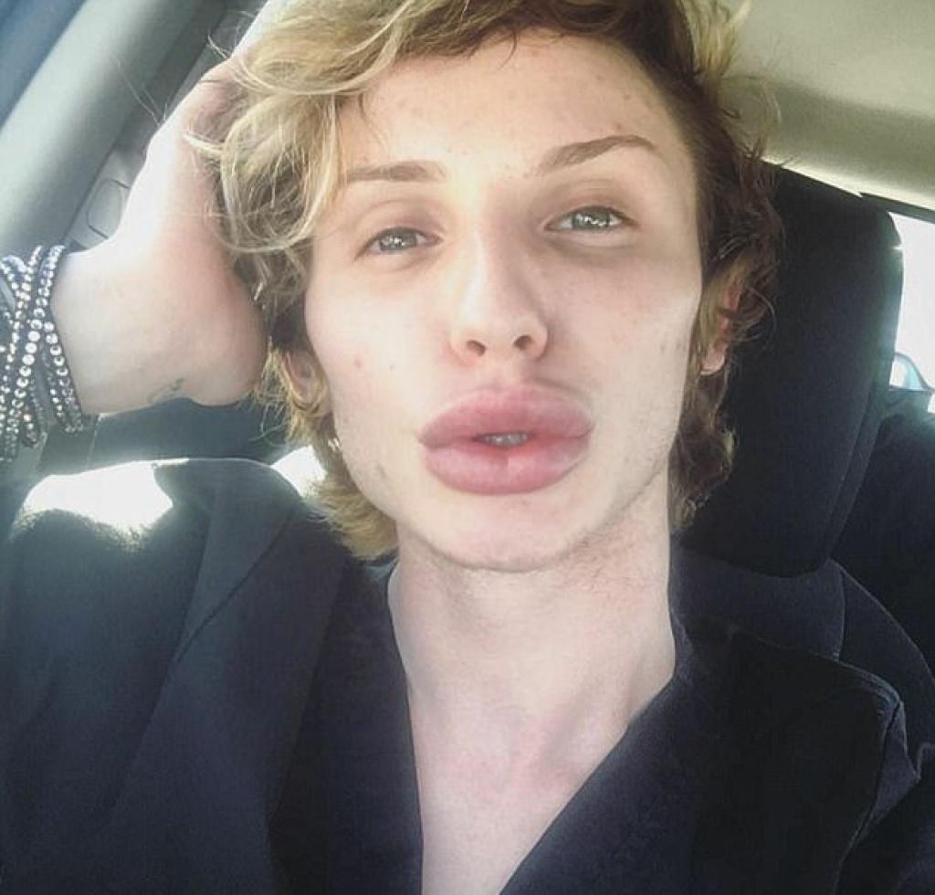 Transgenre-il-depense-une-fortune-afin-de-ressembler-a-son-idole-Kylie-Jenner