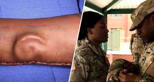une-militaire-se-fait-greffer-un-oreille-implantee-dans-son-bras