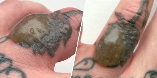 il-souhaite-se-faire-enlever-son-tatouage-mais-rien-ne-se-passe-comme-prevu