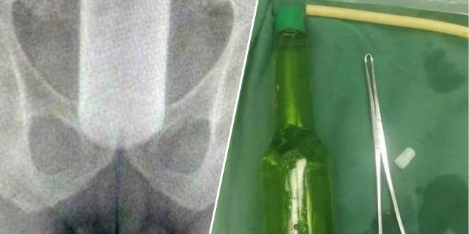 opere-ils-decouvrent-une-bouteille-de-18cm-dans-son-rectum